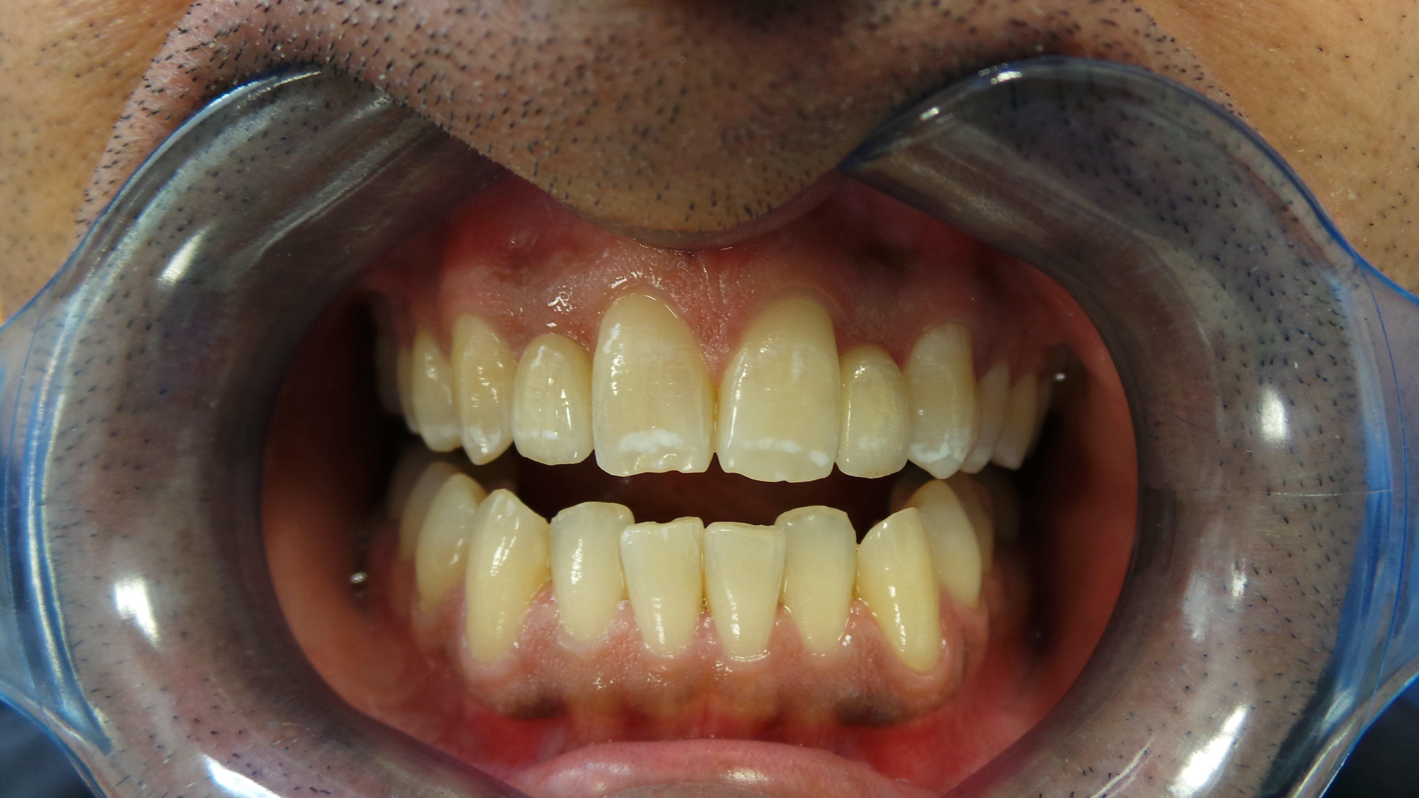 Gallery Dentist Chorlton Didsbury Manchester Wood And